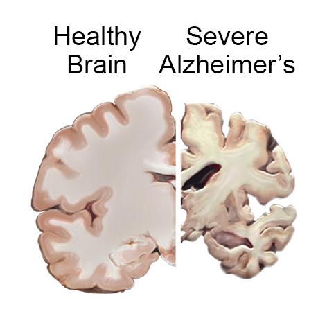 Comparación cerebro normal y afectado por Alzheimer
